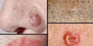 Otkrijte na vrijeme je veoma bitno: 10 znakova da karcinom već raste u vašem tijelu!