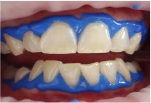 BEZ ODLASKA ZUBARU: Četkajte zube ovom smjesom i recite zbogom kamencu i karijesu zauvijek!