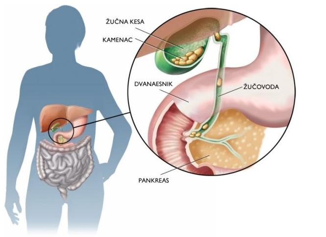 Jednostavno možete podmazati papiloma sirćetom 2-3 puta dnevno, 7 puta sedmično.