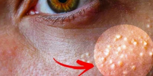 Pojavile su vam se bijele tačkice oko očiju? NI SLUČAJNO IH NE 'ISTISKUJTE': Evo kako ih se možete riješiti